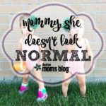 Mommy, she doesn't look normal…